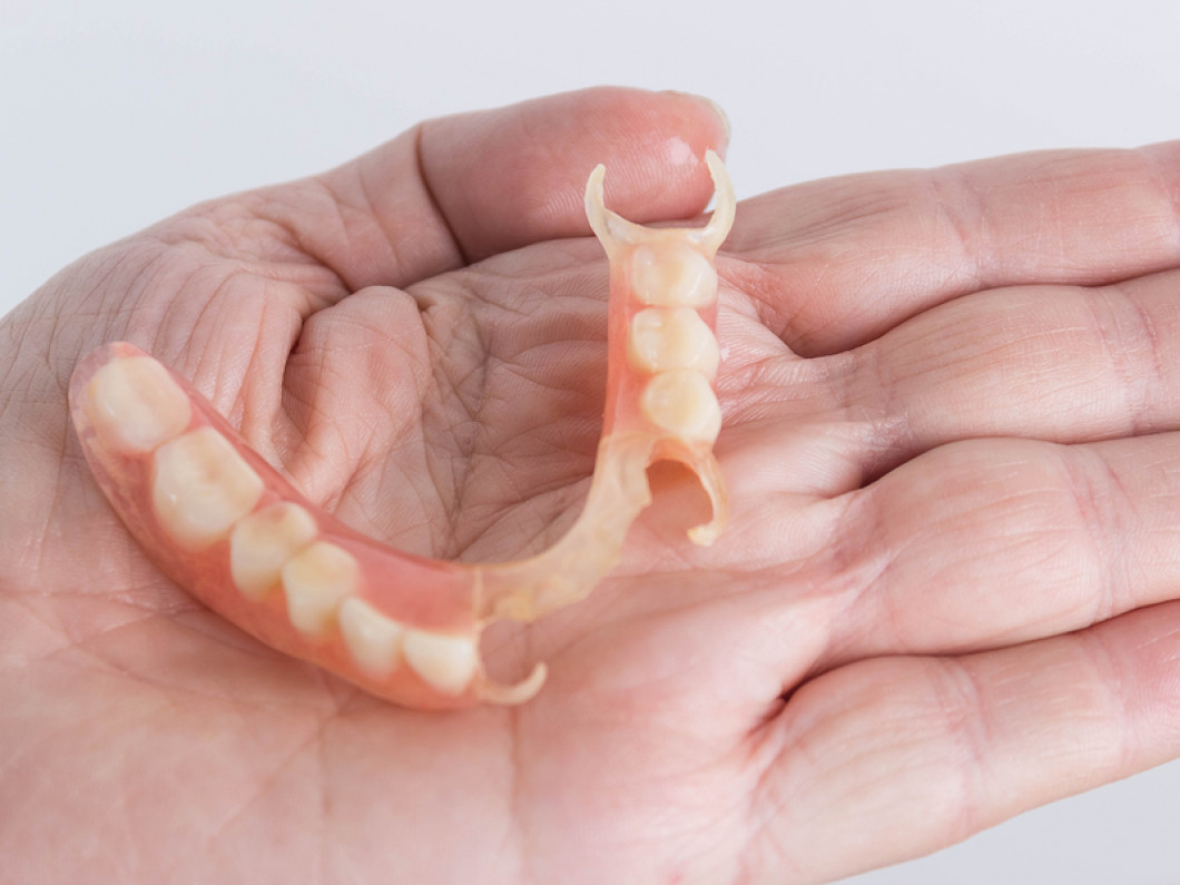 When should you opt for partial dentures?