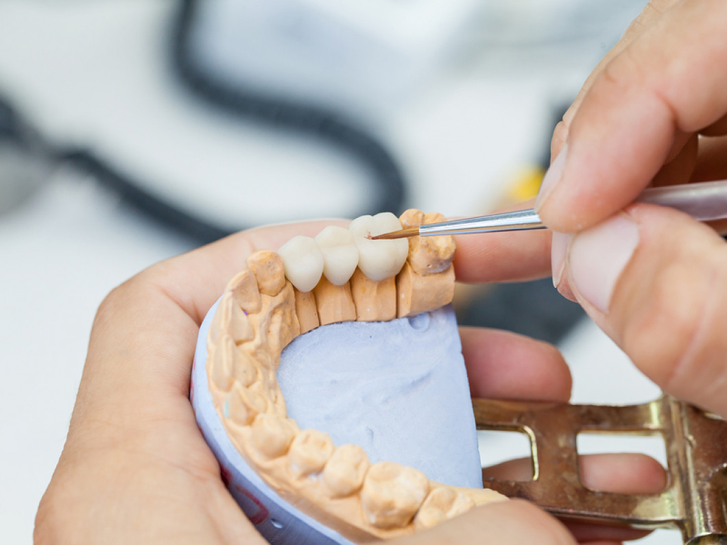 Are your dentures broken or loose?